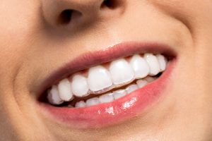 Millard Family Dentistry Dental Clinic Omaha invisalign invisible braces metal braces