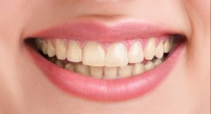 Millard Family Dentistry Dental Clinic Omaha Before and after teeth whitening