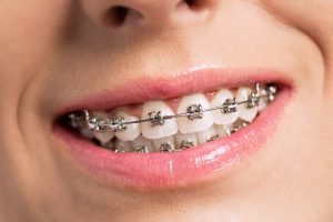 Millard Family Dentistry Dental Clinic Omaha invisalign invisible braces metal braces