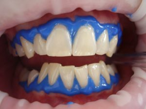 laser teeth whitening, dental, whitening